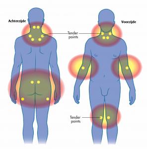 rugpijn / nekpijn en fibromyalgie
