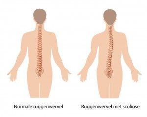 rugpijn en scoliose